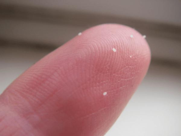 uova lendini pidocchi nel dito immagine