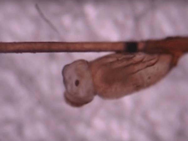 nascita lendine microscopio immagine